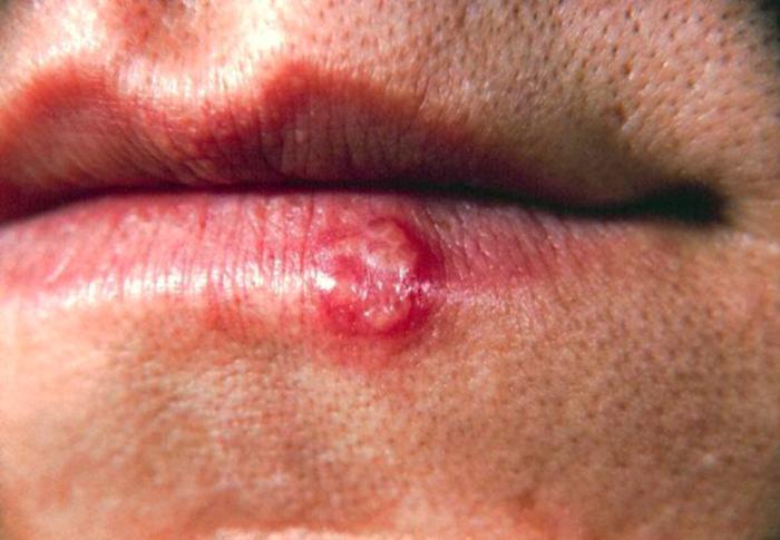 Lesão labial provocada por HSV1 © CDC