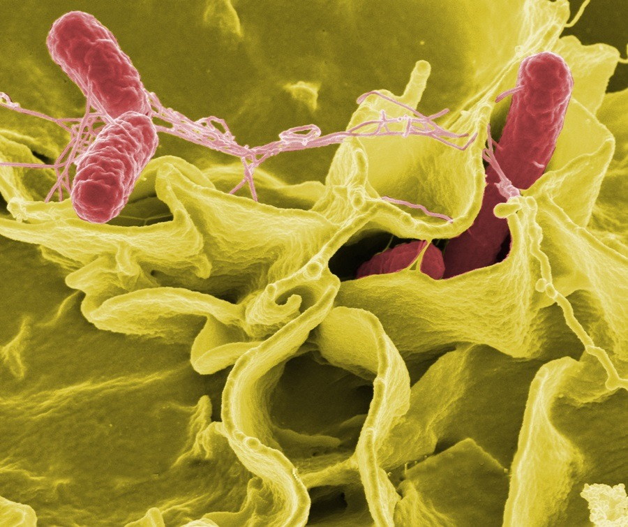 Salmonella enterica © Rocky Mountain Laboratories, NIAID, NIH